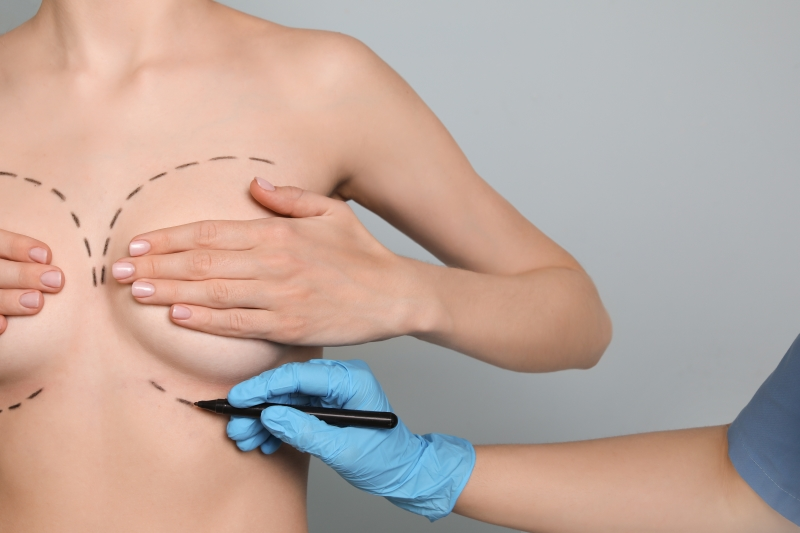 Opiniones del lifting de mamas por pacientes de IM Clinic